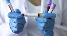 Aggiornamento Coronavirus 24/9: nel modenese 77 nuovi contagi, in Emilia-Romagna 327 positivi e 2 decessi